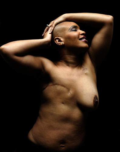 A person with one breast removed smiles with their shirt off.